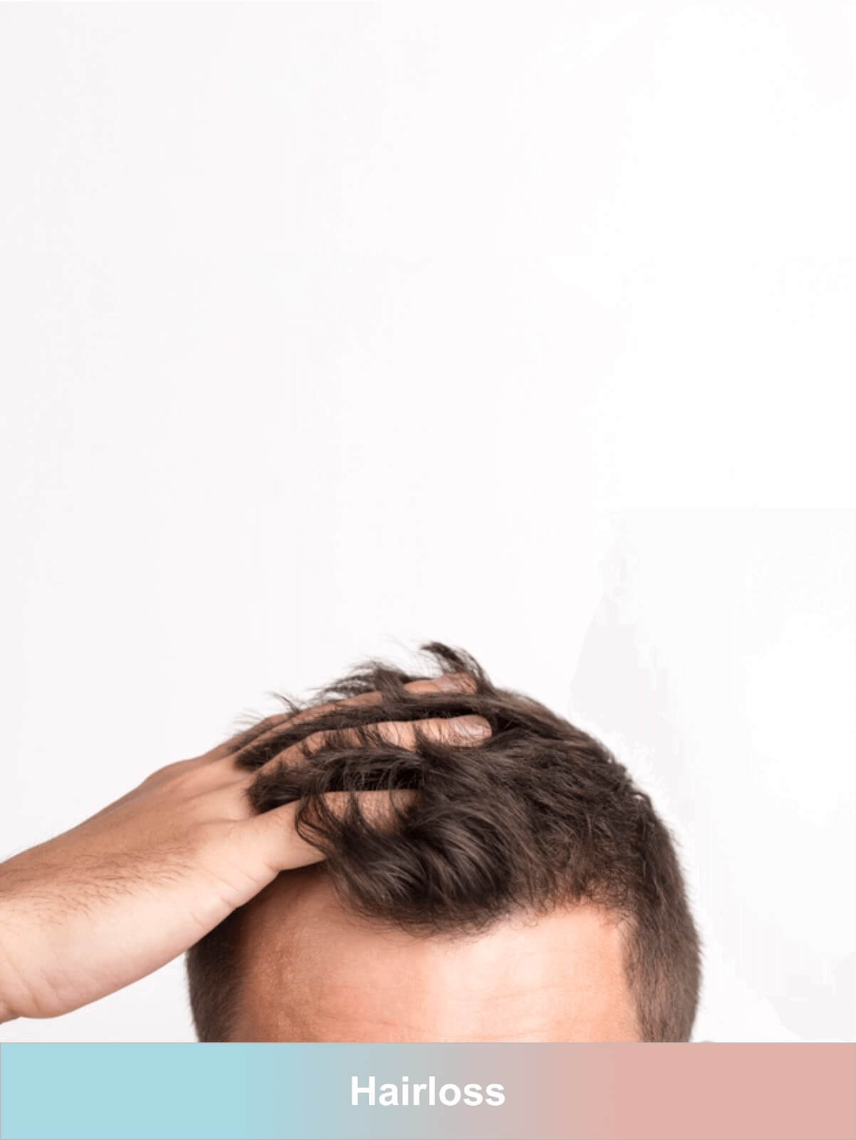 hairloss is worst condition men face causing there low self esteem. Buy online at allgenericcure mens hair loss products